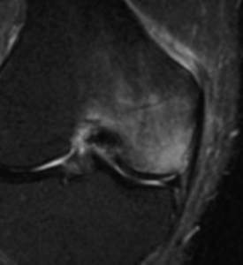 骨挫傷-2-275x300