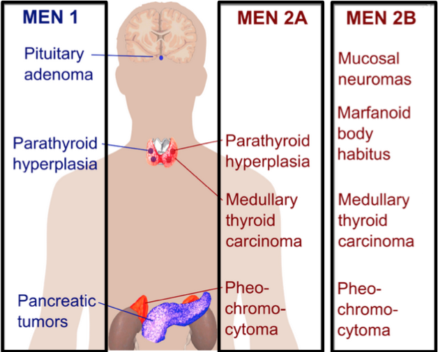 Multiple-Endocrine-Neoplasia.png