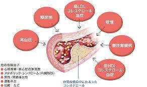 コレステロールが動脈硬化を起こす仕組み