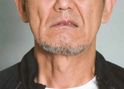 窃盗容疑で逮捕後、東京警察病院から逃走した韓国籍・佐藤沅基こと金沅基容疑者(64)の顔写真を公開し指名手配 … 窃盗先で追いかけられた際に骨折、中野署に現行犯逮捕後に警察病院へ移送され逃走する
