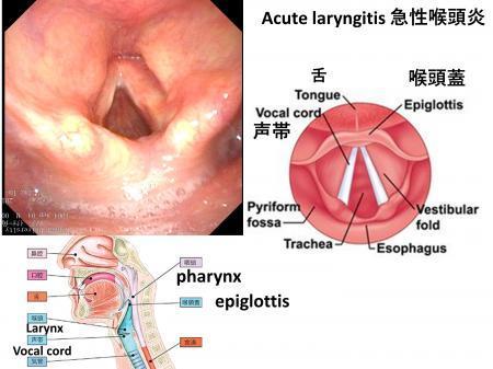 Acute Laryngitis